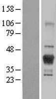 NBL1-12460 - LCMT1 Lysate