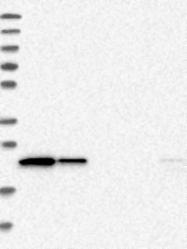 NBP1-82675 - Lipocalin-12