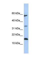 NBP1-57957 - Lipocalin-6