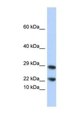 NBP1-56314 - Lipocalin-8