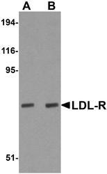 NBP1-77029 - LDLR