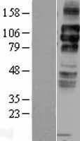 NBL1-12475 - LDL Receptor Lysate