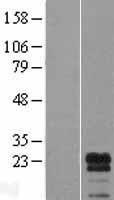 NBL1-12480 - LDOC1L Lysate