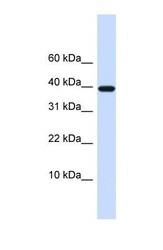 NBP1-59348 - Chondromodulin-1