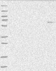 NBP1-90166 - ANKRD41 / ANKLE1