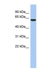 NBP1-70599 - LEMD2