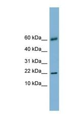 NBP1-57683 - Galectin-14