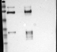 NBP1-89346 - Galectin-3-binding protein