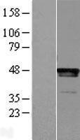 NBL1-12514 - LHX2 Lysate