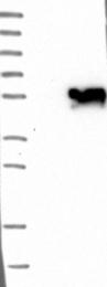 NBP1-86114 - LHX9