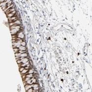 NBP1-85056 - LIMCH1