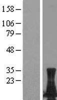 NBL1-12534 - LIMD2 Lysate