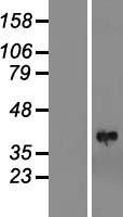 NBL1-12539 - LIMS1 Lysate