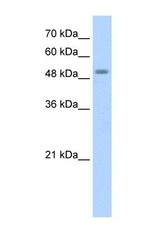NBP1-54989 - STK11