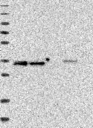 NBP1-84152 - LMAN2L / VIPL
