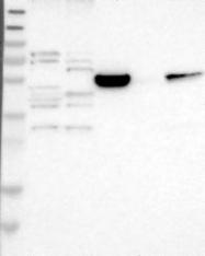 NBP1-89276 - LMBR1