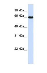 NBP1-57623 - Leiomodin-1