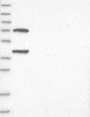 NBP1-89396 - Leiomodin-1