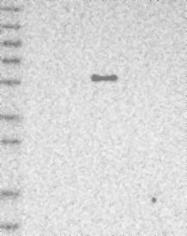 NBP1-89398 - Leiomodin-1