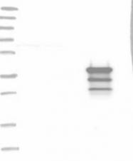 NBP1-85898 - Leiomodin-3