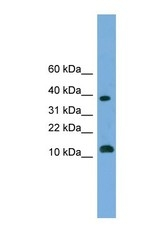 NBP1-70604 - Otubain-2 (OTUB2)
