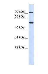 NBP1-57939 - LOXL1