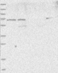 NBP1-85908 - LOXL3