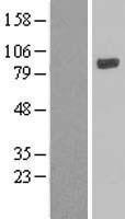NBL1-12642 - LOXL4 Lysate