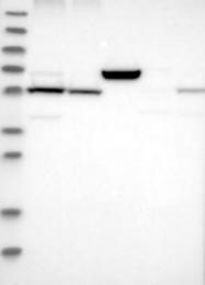 NBP1-88923 - LPCAT1