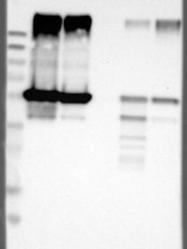 NBP1-88921 - LPCAT2 / AYTL1