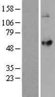 NBL1-12649 - LPCAT2 Lysate