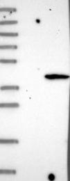 NBP1-83929 - LPGAT1