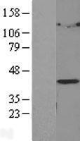 NBL1-12652 - LPGAT1 Lysate
