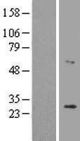NBL1-12659 - LRAT Lysate