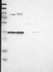 NBP1-81083 - LRCH3