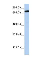 NBP1-69265 - LRCH4