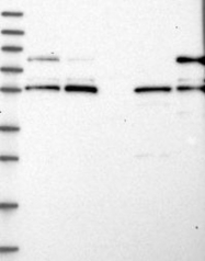NBP1-82821 - LRCH4
