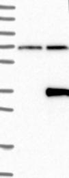 NBP1-89579 - LRRC3B / LRP15