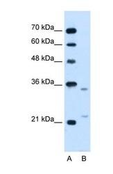 NBP1-69362 - LRPAP1 / A2MRAP
