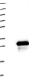 NBP1-84601 - LRRC20