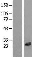NBL1-12680 - LRRC20 Lysate