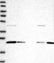 NBP1-92077 - LRRIQ3 / LRRC44