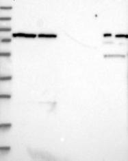 NBP1-92078 - LRRIQ3 / LRRC44