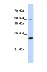 NBP1-56321 - LRRC57