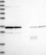 NBP1-93953 - LRRC59