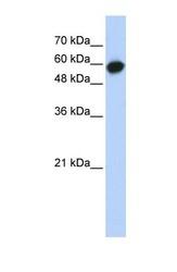 NBP1-53157 - LRRC6