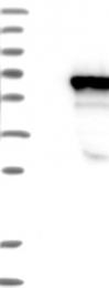 NBP1-82816 - LRRC6