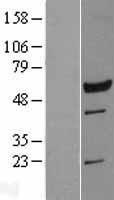 NBL1-12702 - LRRC6 Lysate