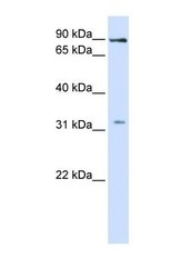NBP1-59628 - LRRC8B