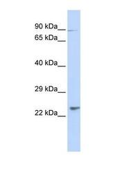 NBP1-70628 - LRTOMT / LRRC51